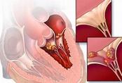 Dấu hiệu nhận biết sớm ung thư khoang miệng