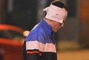 Đêm ca nhạc kinh hoàng, 22 người chết: Nghi phạm duy nhất đã tử vong