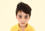 Trẻ nhỏ bị quầng thâm ở mắt cảnh báo bệnh gì?