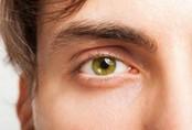 Người đàn ông bị xuất huyết mắt do cố hoãn thời gian 'lên đỉnh'