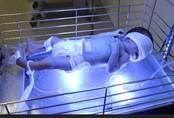 Thay máu cứu sống bệnh nhi 3 ngày tuổi bị vàng da thể nặng