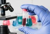 8 loại ung thư có thể chẩn đoán qua thử máu