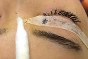 Bác sĩ mò tìm chiếc kim trong mắt cô gái trẻ Hà Nội