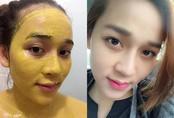 Tường tận 3 cách làm mặt nạ nghệ trị mụn cho làn da hồng hào, căng bóng