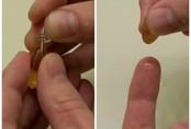 Mẹo trị sẹo mụn an toàn mà không hề tốn kém, không chỉ vết thâm biến mất, da mặt cũng mịn màng sáng sủa hẳn ra