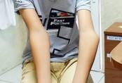 Bác sĩ đục xương chỉnh khuỷu tay vẹo cho cậu bé 12 tuổi