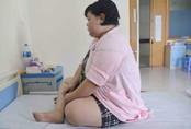 Mỗi bữa chỉ ăn 1 bát cơm, nữ thanh niên vẫn béo phì, mắc đái tháo đường