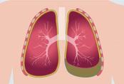 Sau khi đi massage châm cứu, cô gái 24 tuổi nhập viện và phát hiện phổi trái đã bị co lại 30%