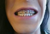 Mục nát hết răng do uống nước tăng lực, chuyên gia cảnh tỉnh về thức uống gây hại sức khỏe