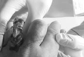 Hy hữu: Mất ngón tay do mắc nhẫn vào đinh ốc