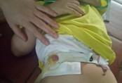 Xót xa cô bé 5 tuổi trải qua 11 lần phẫu thuật mà chưa 1 ngày được đi vệ sinh bình thường