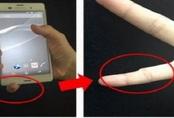 """Người """"nghiện"""" điện thoại di động tin rằng ngón út của họ bị biến dạng do cầm nhiều: Chuyên gia sức khỏe nói gì?"""