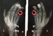 Điện thoại phát nổ, nam thanh niên bị dập nát bàn tay