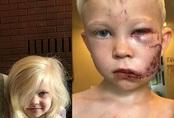 Bé trai 6 tuổi phải khâu 90 mũi sau khi cứu em khỏi chó dữ