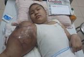Cánh tay của cô bé dân tộc Tày mắc ung thư xương hoại tử, không thể thực hiện phẫu thuật