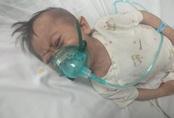 """Xót xa cháu bé 3 tuổi nặng 4,5kg mang nhiều """"khiếm khuyết"""" cần sự trợ giúp"""