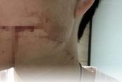 26 tuổi chết sau 10 ngày nhổ răng khôn, chuyên gia chỉ rõ nguyên nhân khiến nhiều người nhầm tưởng