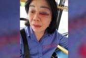 Nhắc nhở khách mở nhạc to gây ồn ào, nữ tiếp viên xe buýt bị đánh bầm mắt
