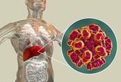Sáu triệu chứng cảnh báo gan suy yếu, làm ngay ba điều để thải độc