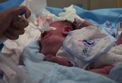 Bác sĩ hai bệnh viện Từ Dũ và Nhi Đồng 1 phẫu thuật EXIT cứu bé sơ sinh nửa trong, nửa ngoài bụng mẹ