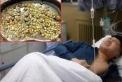 Kinh hãi phát hiện cả 100 viên sỏi nằm đặc kín trọng thận, bác sĩ chỉ rõ nguyên nhân từ thói quen ăn uống