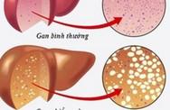 Những dấu hiệu cảnh báo bạn có dấu hiệu bị gan nhiễm mỡ