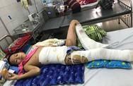 Xót xa cậu bé mất một chân vì điện giật, chân còn lại nguy cơ bị cắt nốt