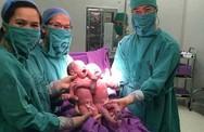 Sinh đôi cùng trứng ra đời nhờ phương pháp thụ tinh ống nghiệm