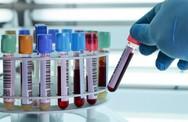 Xét nghiệm máu biết được tuổi thọ của bạn