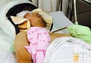 Chụp trộm nữ sinh tắm, thầy giáo bị đánh gần chết