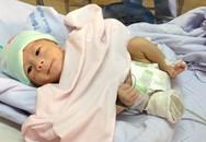 Em bé văng khỏi bụng mẹ ở An Giang: Bé đã cai máy trợ thở, đòi bú mạnh