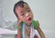 Thiếu 15 triệu đồng, bé 2 tuổi đối diện nguy cơ hỏng phổi