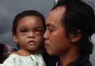 Bé 4 tuổi bị hành hạ ở Bình Dương đã xuất viện