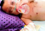 Bé 2 tuổi bị bà ngoại đánh bầm dập