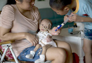 Căn bệnh kỳ lạ khiến những đứa trẻ mãi mãi như lúc mới ra đời