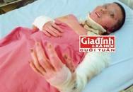 Cô gái bị bỏng toàn thân đi bán vé số góp tiền để phẫu thuật lấy lại nhan sắc