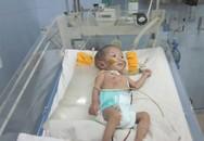 Cảnh ngộ đáng thương của cháu bé vừa sinh được 3 tháng đã lên bàn mổ