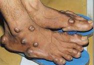 Hỏi và đáp về bệnh gút