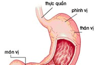 Cảnh giác với bệnh viêm loét hang vị dạ dày