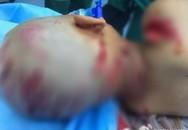 Mẹ kế chém hơn 30 nhát dao vào người con riêng của chồng