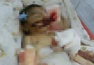 Ấn Độ: Bé 10 ngày tuổi bị chuột cắn chết trong bệnh viện