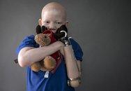 Số phận bi thương của các bé trai bạch tạng bị chặt tay làm bùa chú