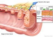 5 triệu chứng của ung thư đại tràng: Có thể bạn mắc mà không biết