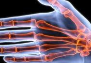 Nguy hại khôn lường khi bẻ khớp ngón tay có thể bạn chưa biết