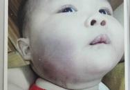 Bé 8 tháng tuổi nghi bị đánh ở nhà trẻ, sưng tím mặt mũi, tay chân