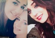 Cô gái 18 tuổi chết vì nhầm tưởng giảm cân