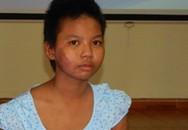 """Bé 12 tuổi bị mẹ ruột tưới xăng đốt: """"Con sẽ ráng tập luyện cho khỏe để đi học"""""""