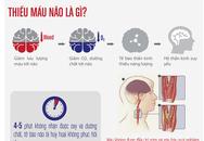 Cách điều trị thiếu máu não hiệu quả