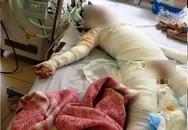 Bé gái 5 tuổi bỏng toàn thân do than văng vào người