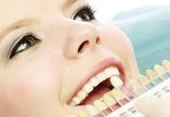Tẩy răng không đúng cách làm viêm lợi, chết tủy